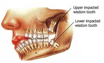 Is it wise to remove wisdom teeth